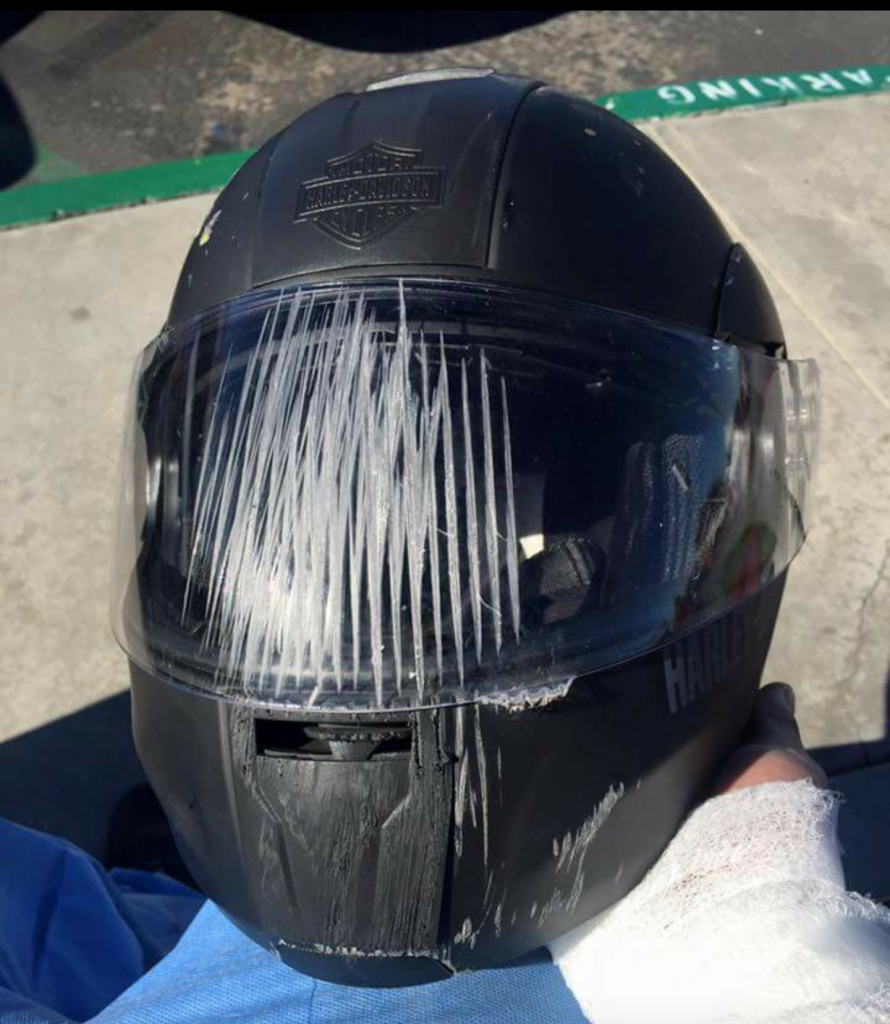 wear a full faced helmet when riding your motorcycle